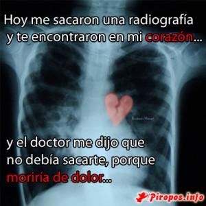 La radiografía