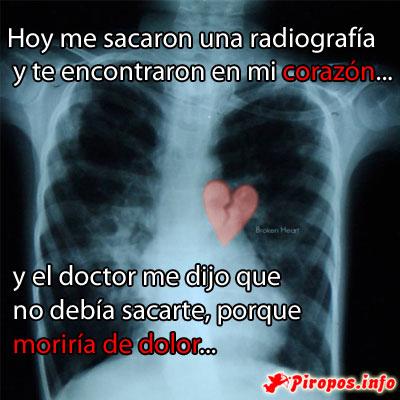 Radiografía en mi Corazón
